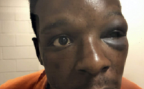 Roderick Walker with swollen shut eye after beating by deputy