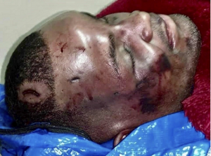 Injuries to Ronald Greene sustained from his beating by Louisiana State Police
