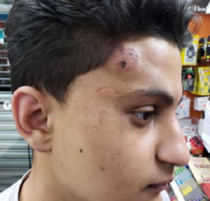 Teen assault by New Jersey police