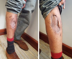 Frank Baker displays the damage done to his leg by a police K-9